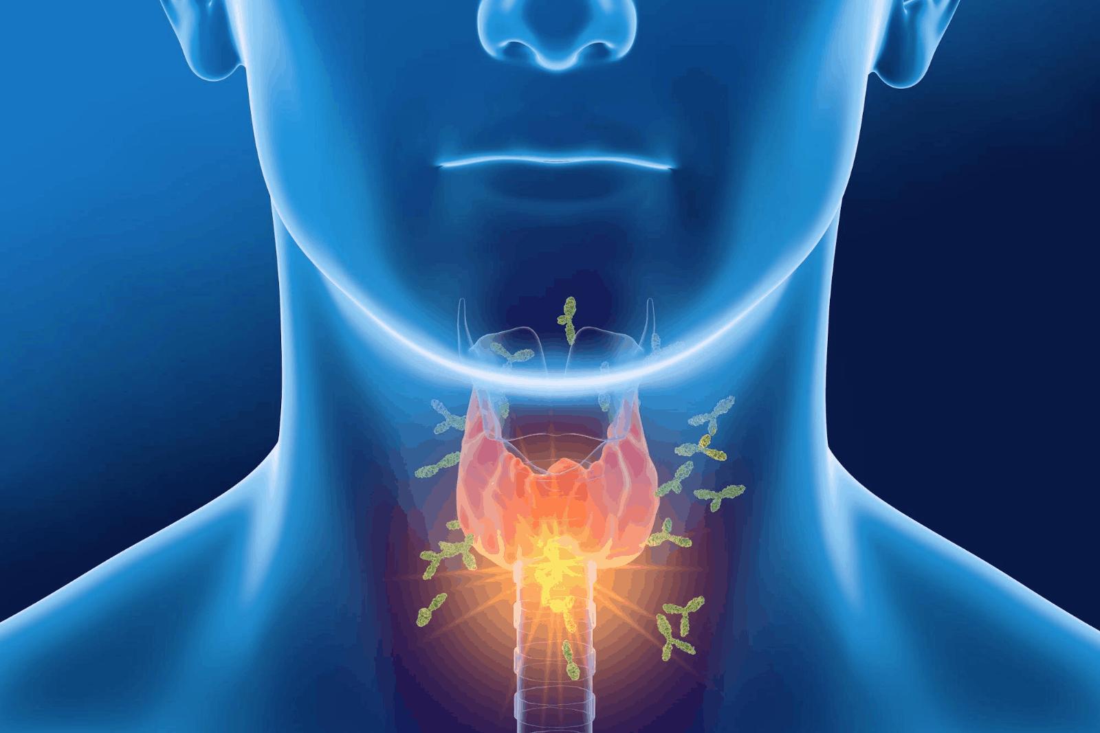 thyroid antibodies: 3D illustration of human thyroid with antibodies